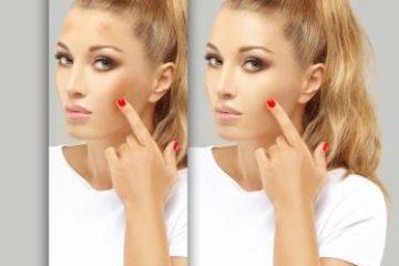 פיגמנטציה בעור הפנים ודרכי טיפול